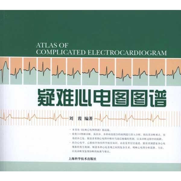 Difficult ecg patterns xinhua bookstore genuine selling books