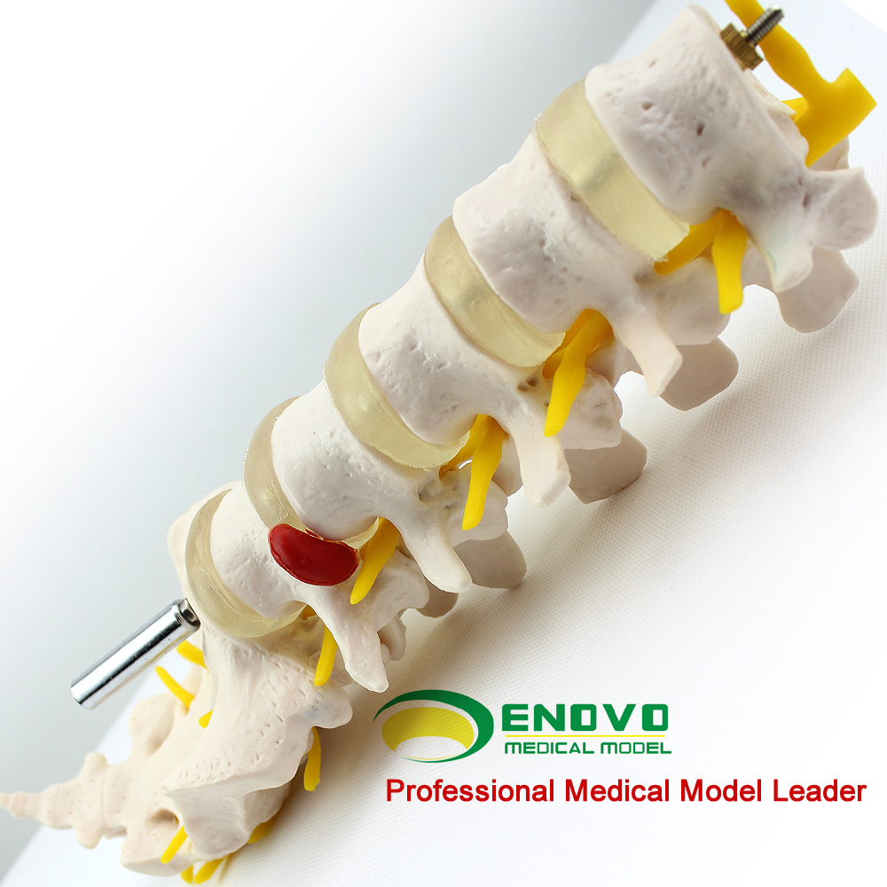 Enovo genuine human anatomical model anatomical model of lumbar intervertebral disc section five orthopedic bone skeleton model skeleton model