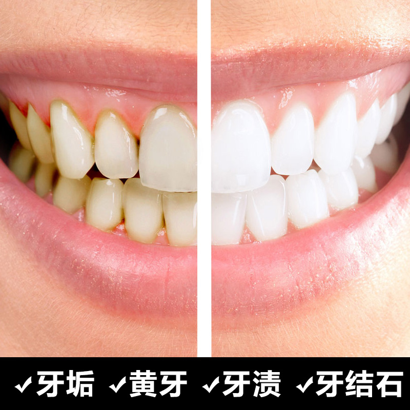 [Buy 2 rounds 3] go smoke stains teeth stains teeth whitening teeth cleaning powder available dentifrice yellow teeth Tartar tartar