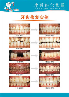 Dental knowledge posters/wall charts dental/dental flipchart/dental restoration example 1/dental posters